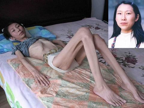Затворници в китайски лагери. Джао E, Фалун Гонг практикуваща, след затварянето й в лагера.